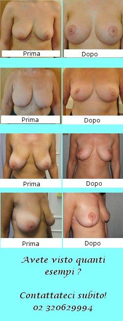 Tela di lino dopo operazione su rimozione di un petto